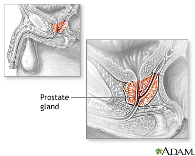 Transurethral resection of the prostate discharge instructions